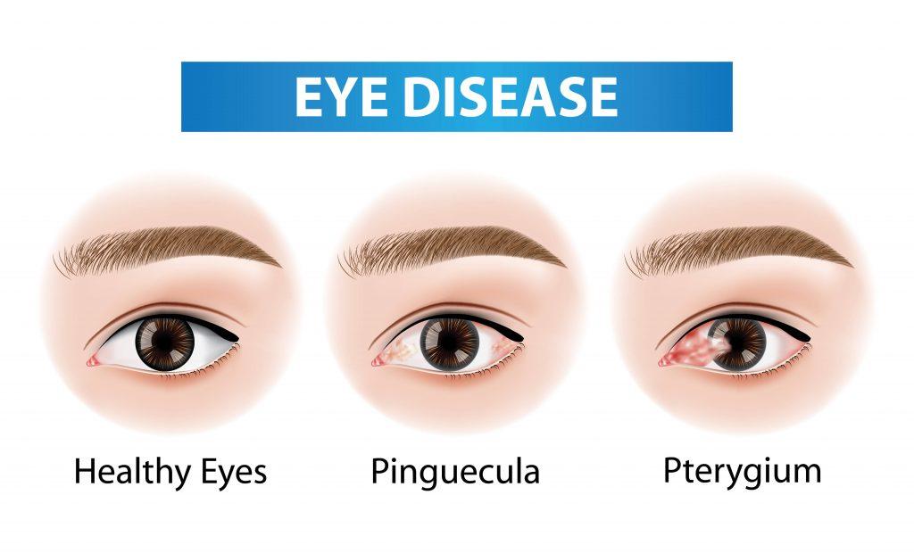 Pinguécula y pterigion, dos anomalías oculares, cada vez más frecuentes
